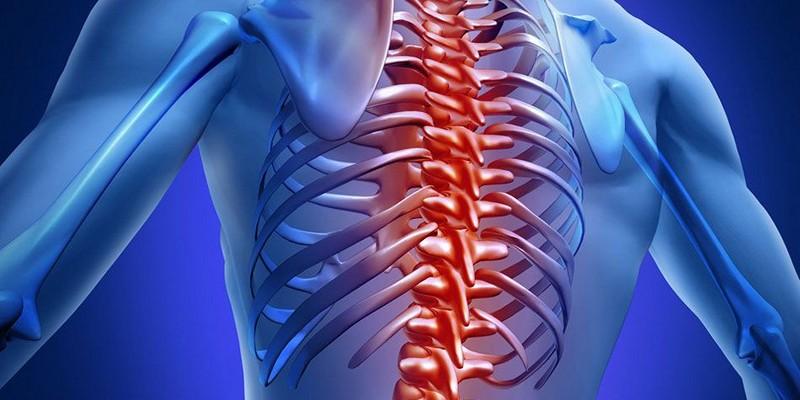 Артроз грудного отдела позвоночника спортивное лечение