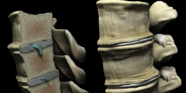 Грыжа Шморля входит в тело позвонка и не задевает нервных окончаний и кровеносных сосудов