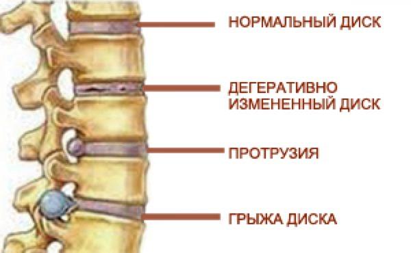 Грыжи и протрузии межпозвонковых дисков
