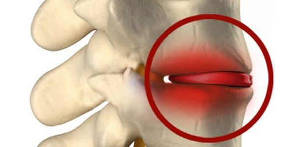 Инфицированный воспаленный диск вызывает цикличную боль в позвоночнике и прилегающих мягких тканях