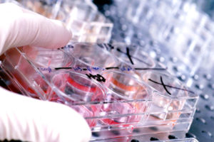 Исследование крови наопределение уровняальфа-протеина
