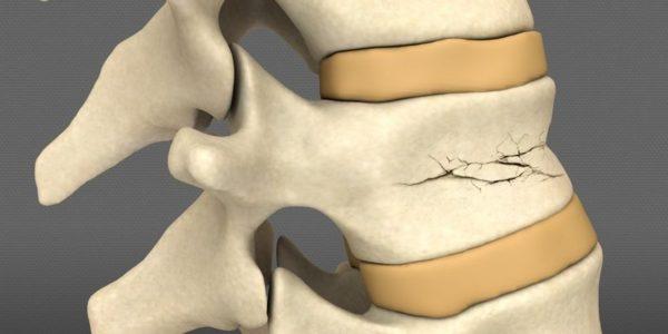 При повреждении одного позвонка симптомы могут проявляться умеренным дискомфортом и отечностью в области травмы