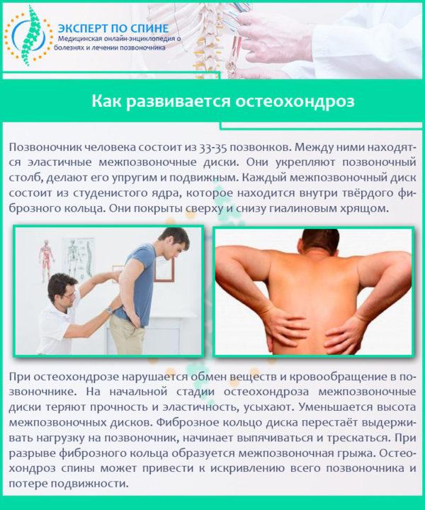 Как развивается остеохондроз
