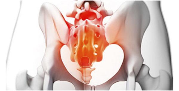 Нередко причиной болей в крестце является ложная сакрализация, вызванная различными патологиями костной ткани