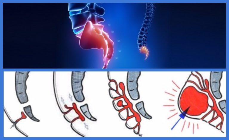 Копчиковая грыжа - симптомы, причины и лечение