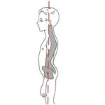 Кругловогнутая спина