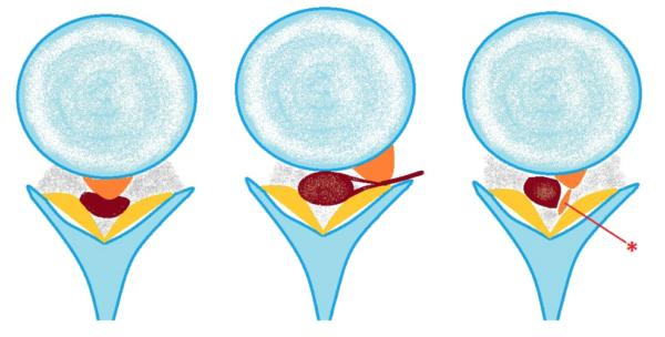Пример-схема экструзий диска при расшифровке КТ позвоночника. Слева –фораминальная экструзия (грыжа) со сдавлением дурального мешка; посередине – фораминальная экструзия со сдавлением нервного корешка, справа – секвестрированная грыжа диска (секвестр отмечен звездочкой «*»)