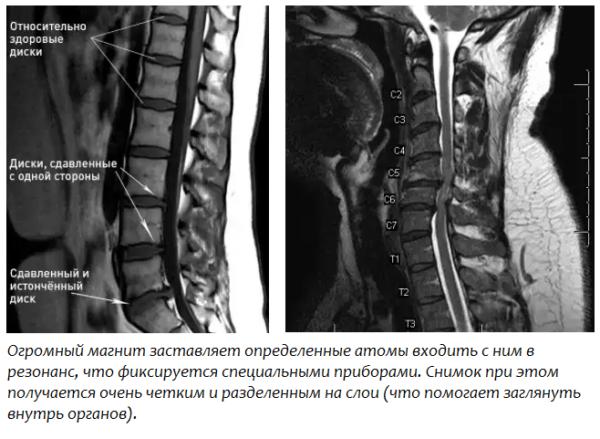 Магнитно-резонансная томография – самый популярный метод диагностики