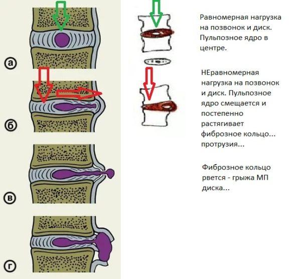 Механизм образования грыжи межпозвоночных дисков