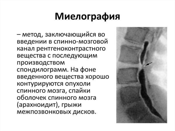 Миелография