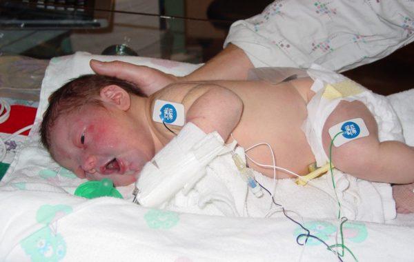 В отделении реанимации ребенка почти сразу начинают кормить. Иногда ему назначаются антибиотики. Ежедневно проводится определение размеров головы в целях ранней диагностики гидроцефалии