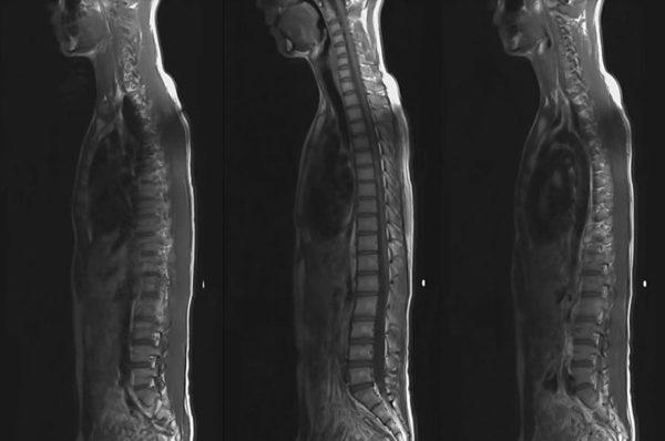МРТ позвоночника. Томограмма