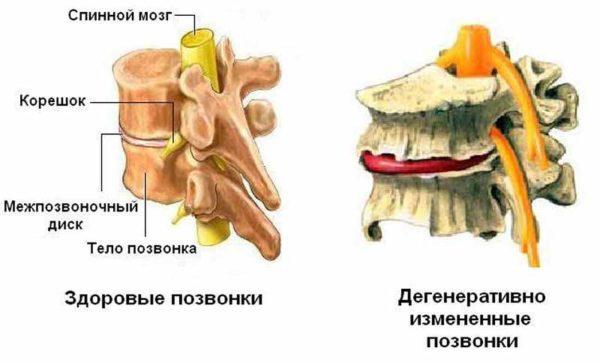 Нарушение тканевого обмена приводит к развитию дегенеративных процессов в межпозвоночных дисках