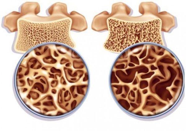Нехватка фосфора и кальция приводит к снижению плотности костной ткани и другим негативным изменениям в позвонках
