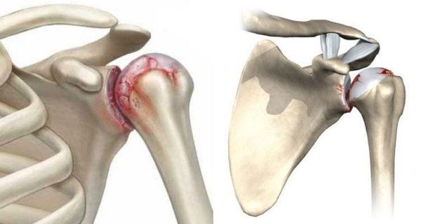Одним из осложнений остеохондроза может быть артроз плечевого сустава