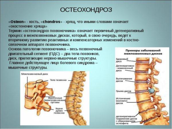 Межпозвоночный остеохондроз поясничного отдела 1 стадии thumbnail