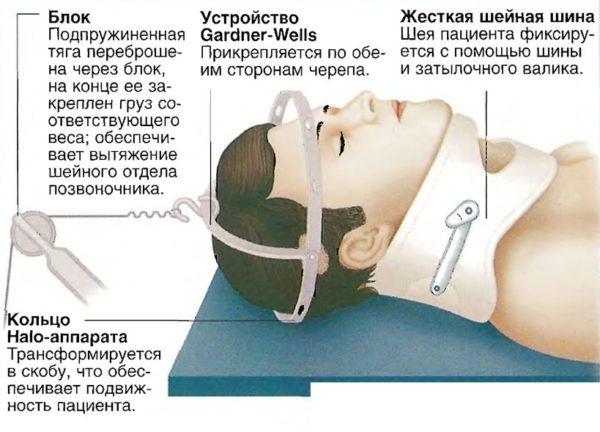 При серьезных травмах позвоночника применяют методику скелетного вытяжения