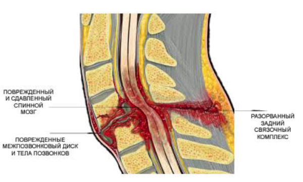 Нестабильный перелом со смещением и повреждением спинного мозга