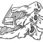 6-7-й позвонок (перелом остистых отростков, перелом землекопа)