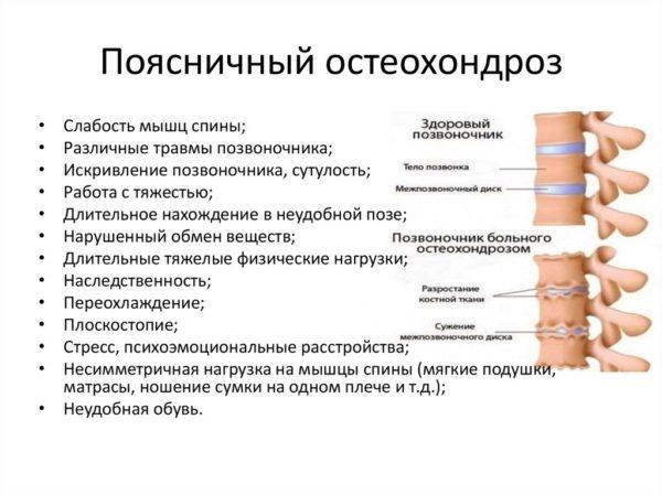Поясничный остеохондроз, причины