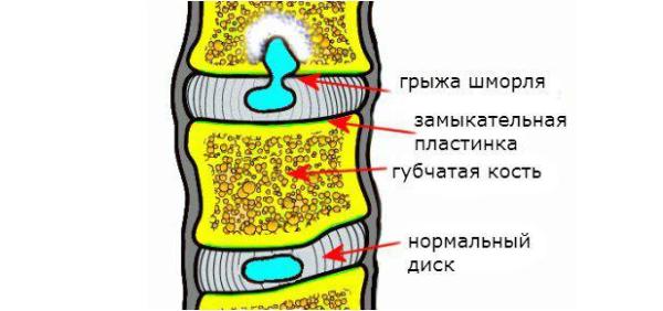 Когда повреждается замыкательная пластинка,ядро продавливается внутрь тела позвонка