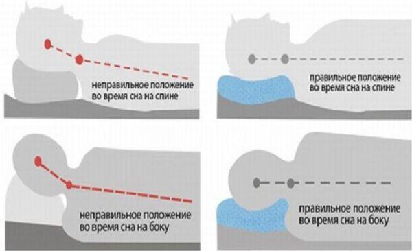 Правильное положение для сна на спине и боку