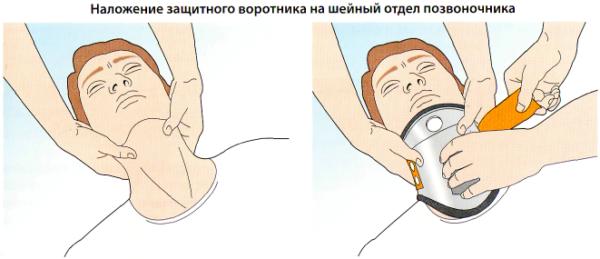 При необходимости транспортировки, человеку следует очень осторожно зафиксировать шею специальным воротником или подручными средствами