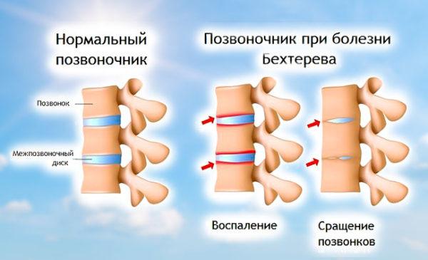 Одной из распространенных причин грыжи в пояснично-крестцовом отделе является болезнь Бехтерева