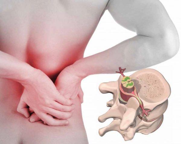 Признаки грыжи позвоночника всегда проявляют себя в болевом синдроме