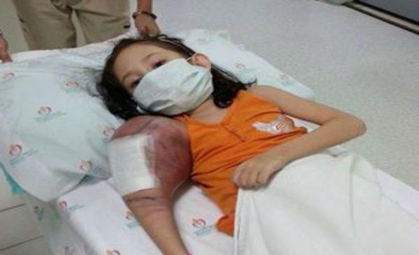 Саркома Юинга чаще диагностируется у юных пациентов