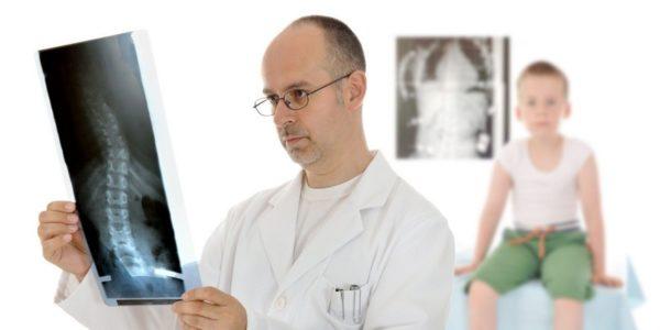 Для выявления патологических изменений в позвоночнике пациенту назначается рентгенография