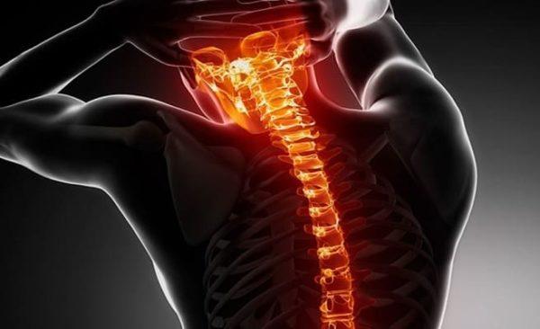 Изменения в позвоночном столбе вызывают болевой синдром, ухудшают кровоснабжение головного мозга