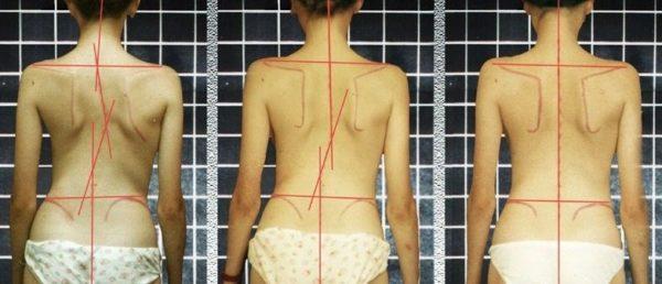 Характерные проявления сколиоза - выраженная асимметрия лопаток, плеч, перекос таза
