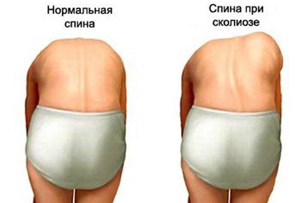 При сколиозе деформации проявляются четче в наклонном положении тела