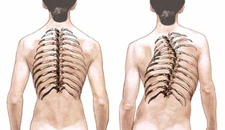 Степени сколиоза: характеристики, симптомы, лечение
