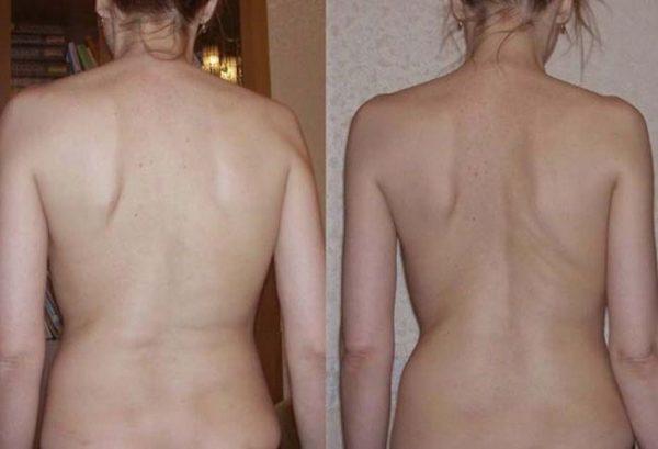 Искривление второй степени имеет выраженные внешние признаки и нуждается в обязательном лечении