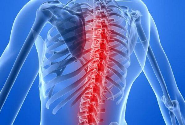 Ноющую боль в спине могут вызывать инфекции, поражающие позвоночник и спинной мозг