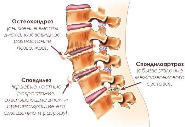 К деформирующей дорсопатии можно отнести ранние стадии остеохондроза, спондилоартроза и спондилеза