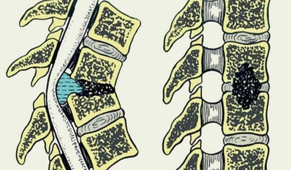 Остеомиелит - одна из самых опасных спинальных инфекций
