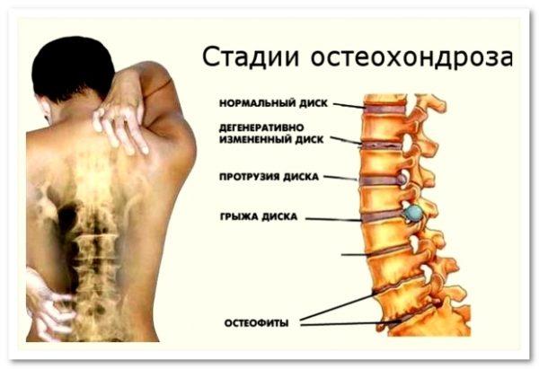Российскими ортопедами выделяется 4 стадии остеохондроза