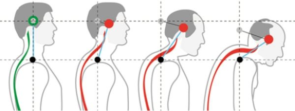 Шейный лордоз переходит в гиперлордоз при значительном увеличении угла искривления позвоночного столба