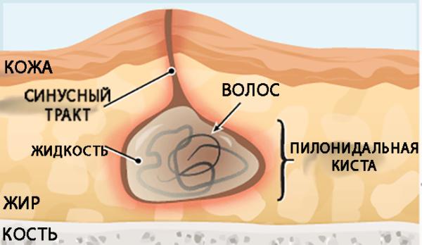 Одной из основных причин воспаления копчикового хода является врастание волос в эпителиальный слой