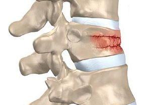 Скелетное вытяжение при переломе шейного отдела позвоночника