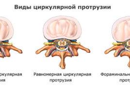 Циркулярная протрузия диска