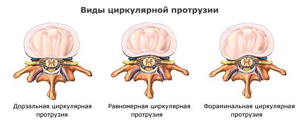 Что такое циркулярная грыжа диска