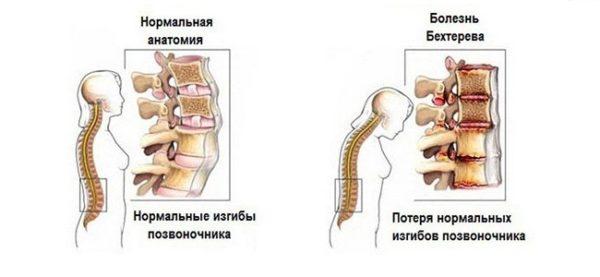 Грыжа Шморля: симптомы и лечение, причины и признаки заболевания, классификация