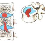 Что делать при грыже поясничного отдела позвоночника шморля