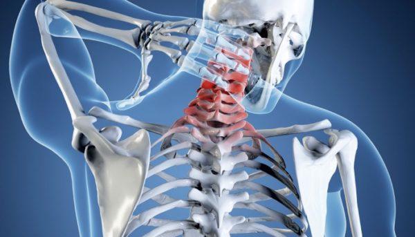 При артрозе деформирующего типа: дисплазия хрящевой ткани, изменение анатомических параметров, нарушение кровоснабжения и иннервации, присутствует постоянный болевой синдром