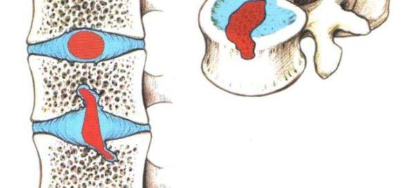 В отличие от обычной межпозвонковой грыжи, грыжа Шморля располагается в вертикальной плоскости