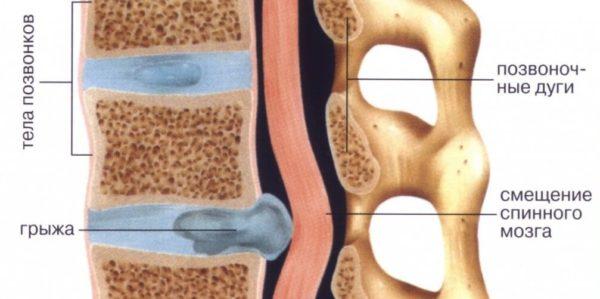 В запущенной форме заболевания могут дополнительно образовываться горизонтальные грыжи дисков